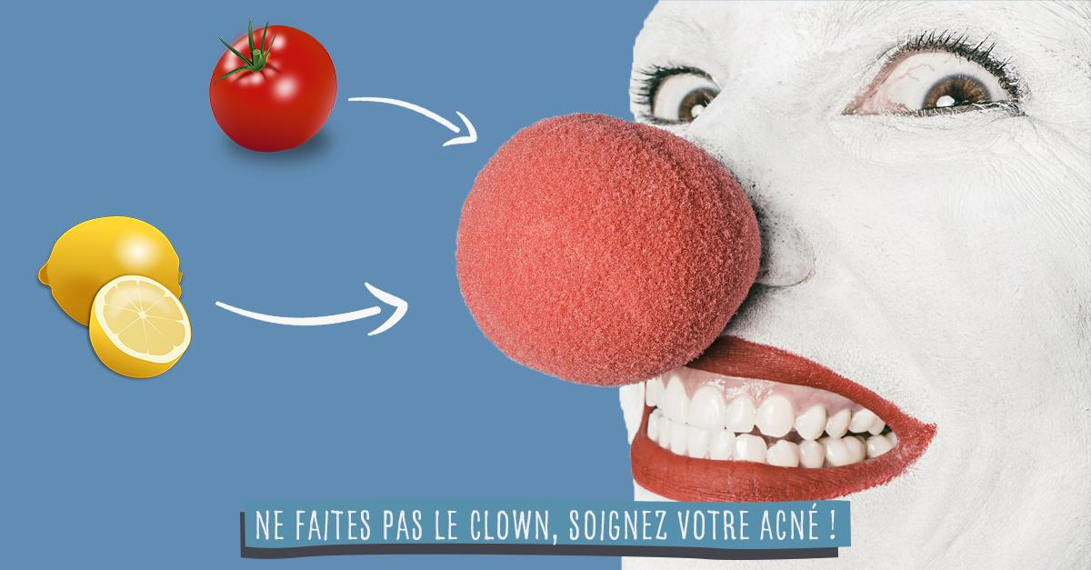 Comment se débarrasser de vos boutons d'acné