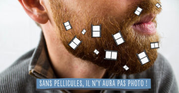 pellicules de barbe que faire