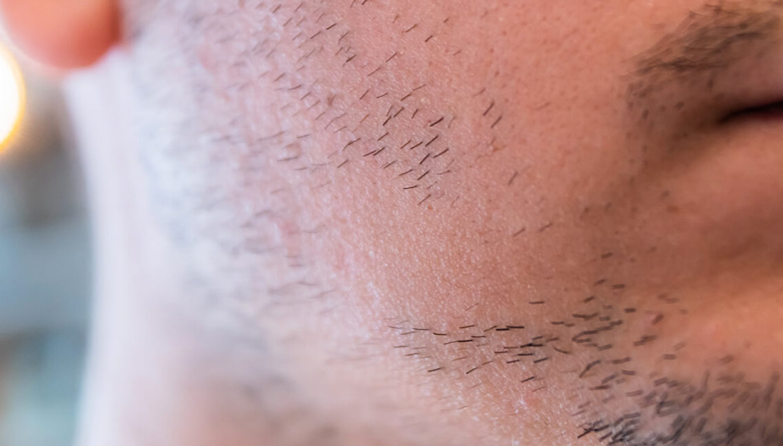 greffe barbe comment ça marche