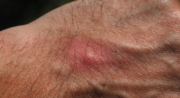 Que faire piqûre de moustique