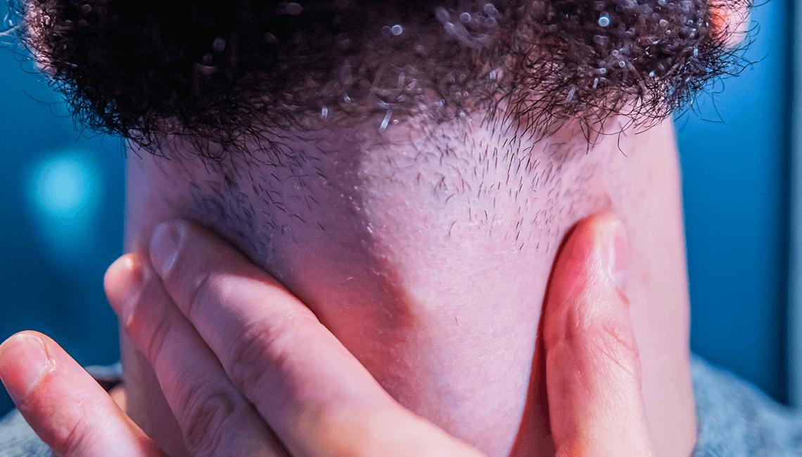 Feu de barbe que faire
